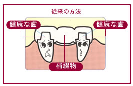 implantimag1_1