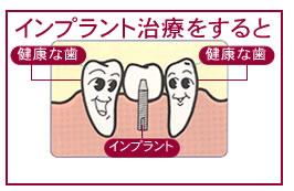 implantimag1_2
